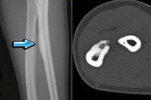 tratamentul osteomului articulației umărului)