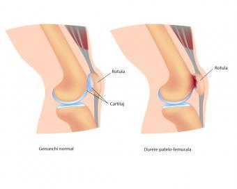 sindromul durerii de genunchi)
