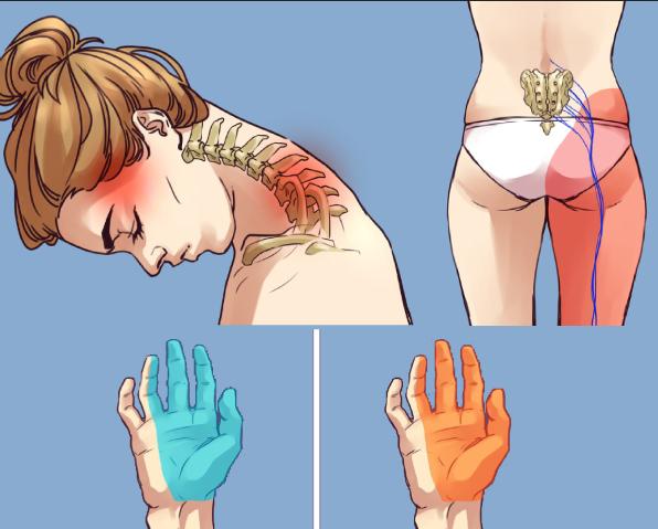 dureri de gât și umeri menisc al artrozei articulației genunchiului