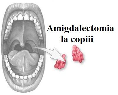 dureri articulare amigdalelor)