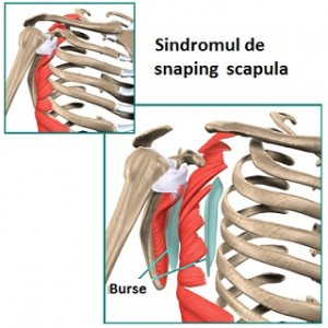 Articulația în omoplatul stâng doare, Durerile Umarului – Cauze si tratament