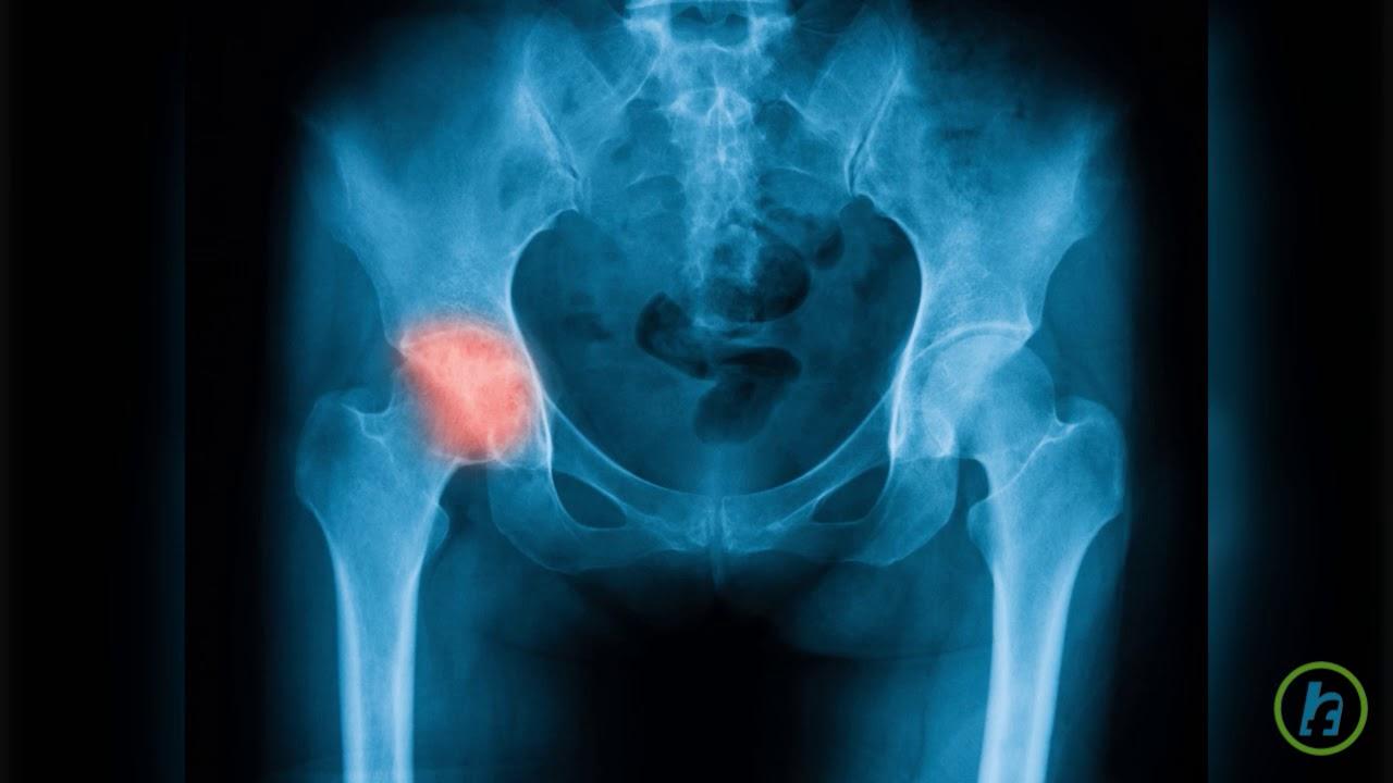 dureri de șold și genunchi