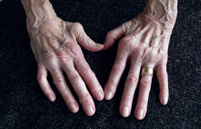 artrita reumatoidă la mâini)