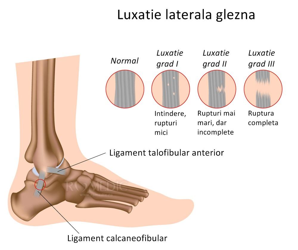 cum se tratează subluxația articulației gleznei)