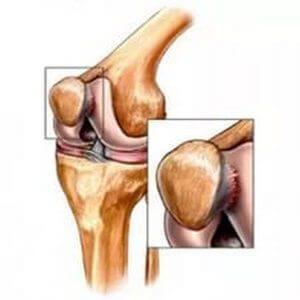 a îndepărtat umflarea articulației de ipsos cum arată articulațiile într-o boală