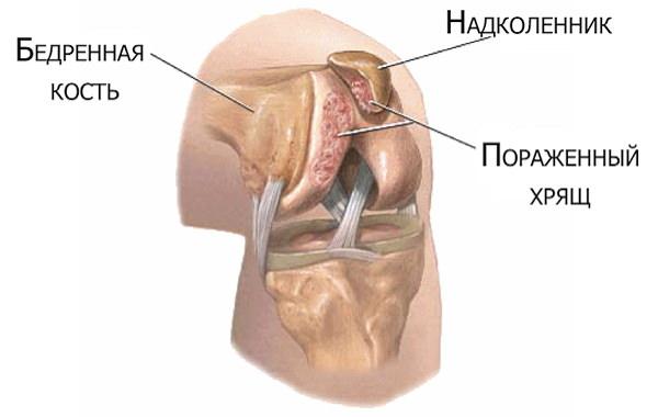 refacerea circulației sângelui în articulația genunchiului