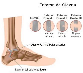 deteriorarea gleznei piciorului