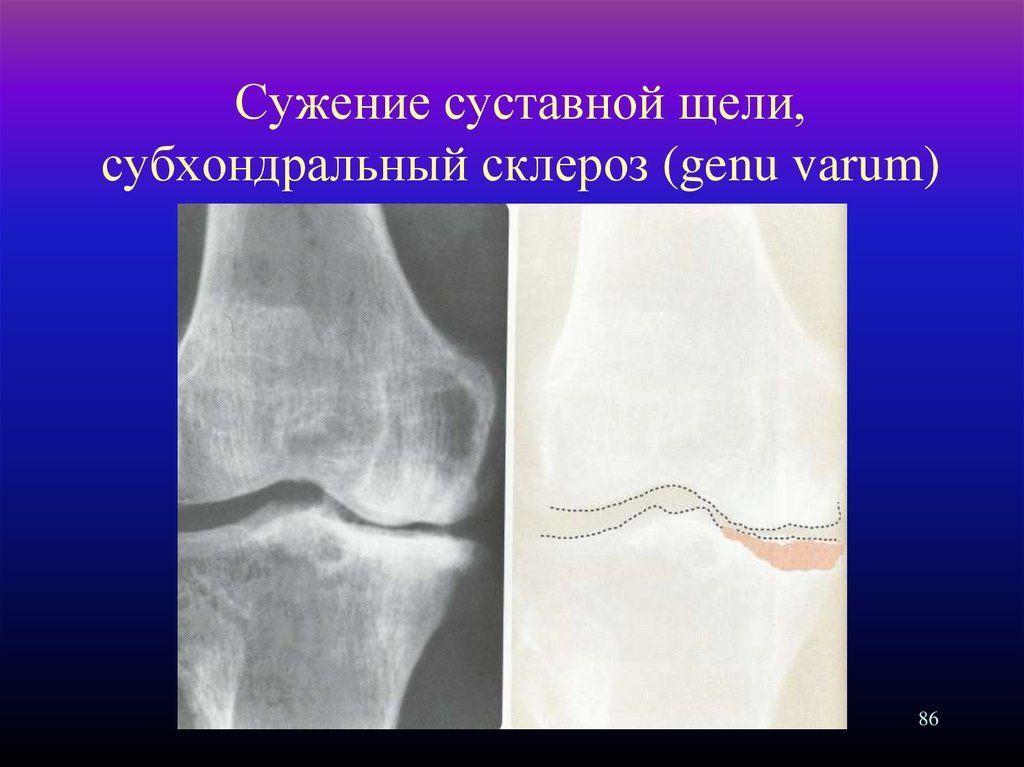 unguent articular ortofen