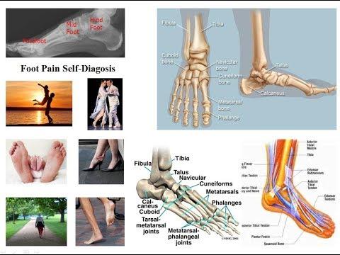 Tragerea durerii în articulația gleznei