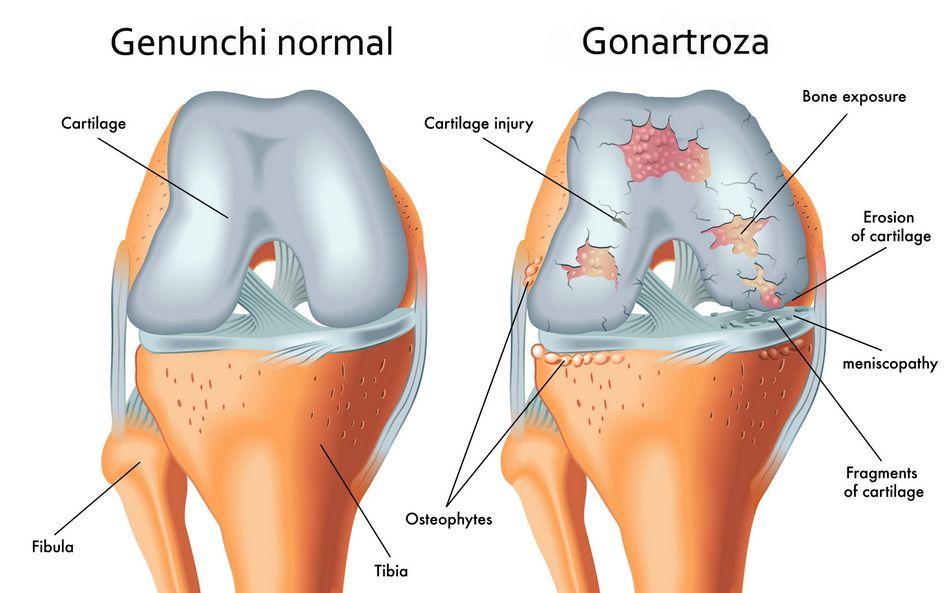 distrugerea articulației genunchiului)