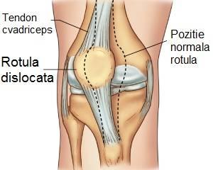 luxația articulației genunchiului)
