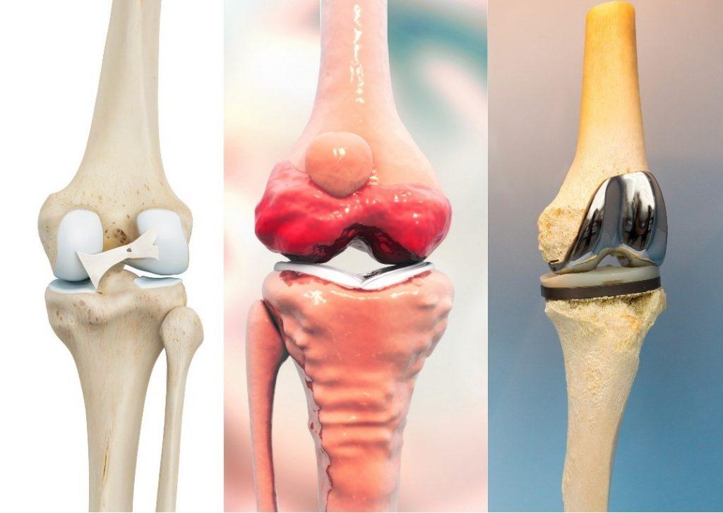 schimbă articulația genunchiului Preț