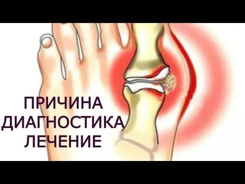 exacerbarea în tratamentul articulațiilor