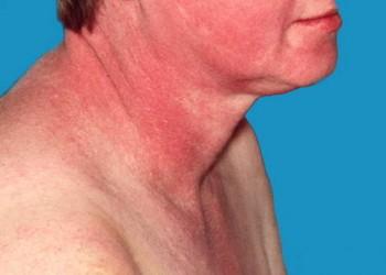 boli sistemice ale dermatomiozitei țesutului conjunctiv)