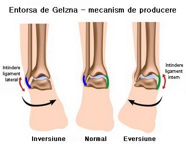 umflarea articulației gleznei după fractură)