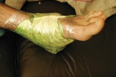 tratarea cu artroză cu folie de aluminiu)
