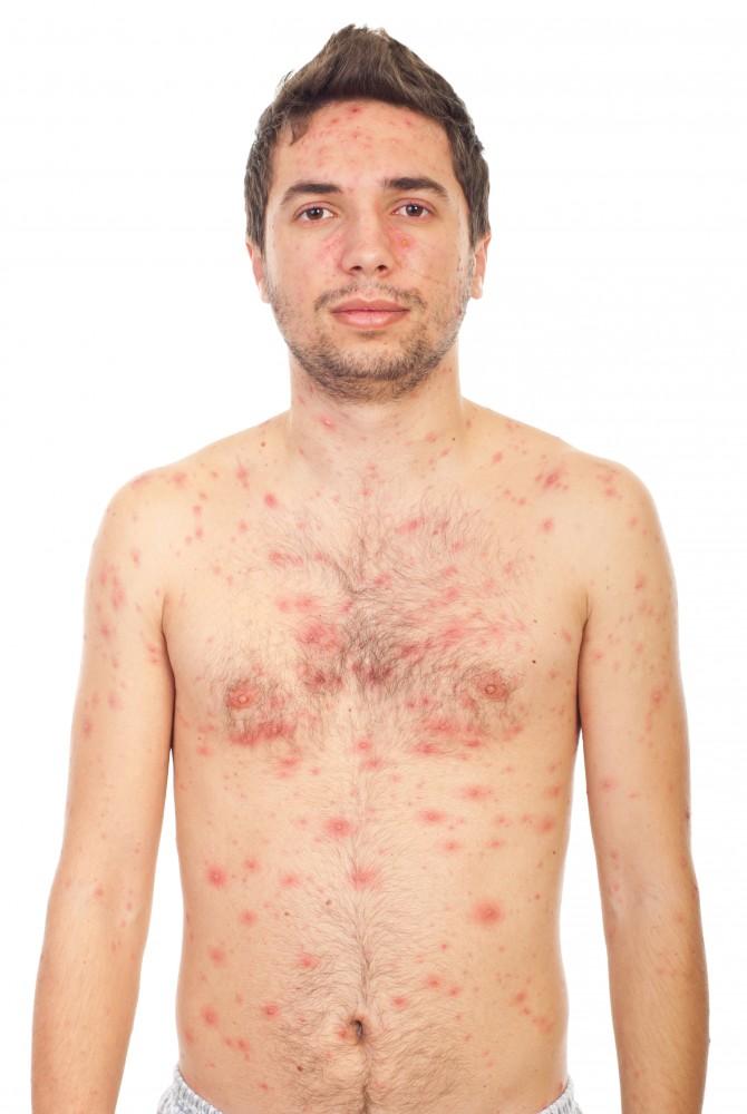 tratamentul alergic al articulațiilor