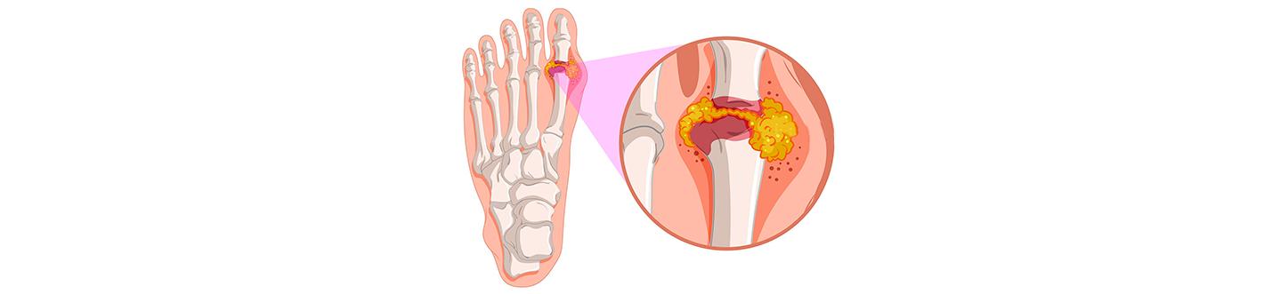 tratament de umflare a articulațiilor renale