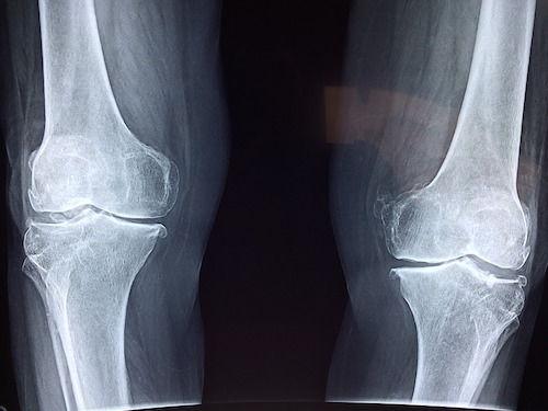cu atât mai bine să tratezi articulațiile genunchiului