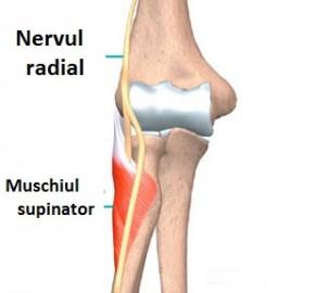 nervul ciupit în articulația cotului)