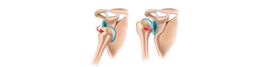 luxația anterioară a tratamentului articulației umărului)