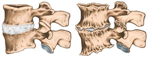 artroza articulației ce este artrita articulațiilor genunchiului la adolescenți