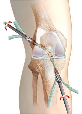dureri de genunchi după operație)