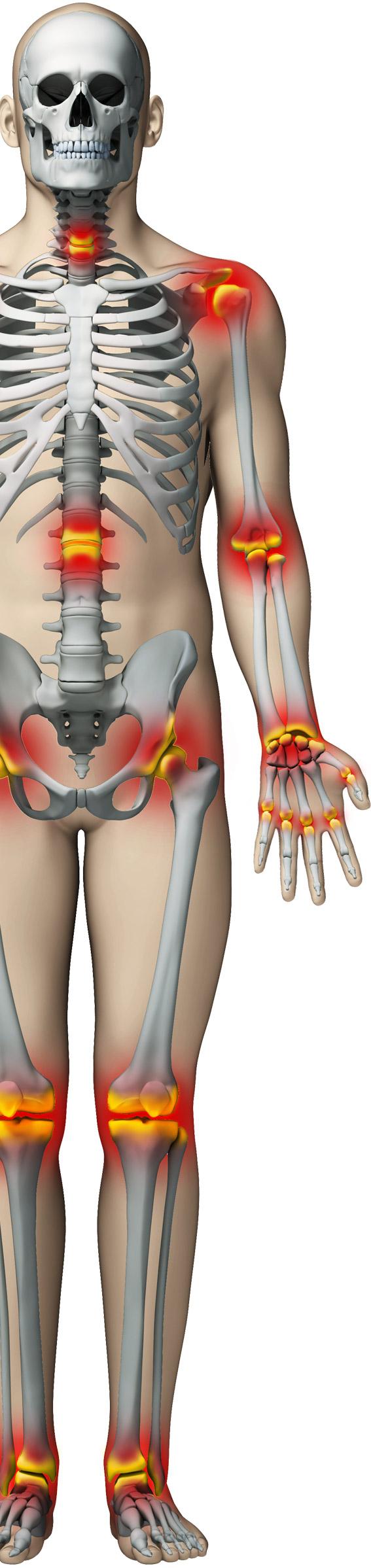 dureri articulare cu tensiune