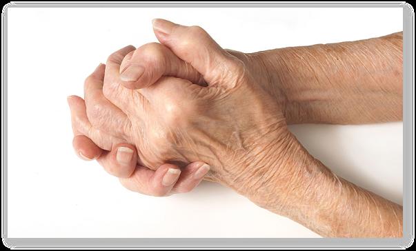 tratamentul farmacologic al articulațiilor)