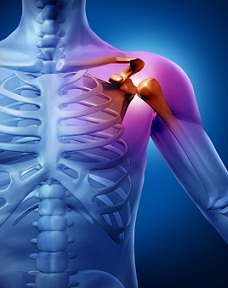 căci durerea în articulația umărului poate provoca)