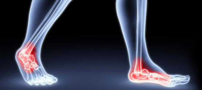 cum se tratează osteoartroza articulației umărului