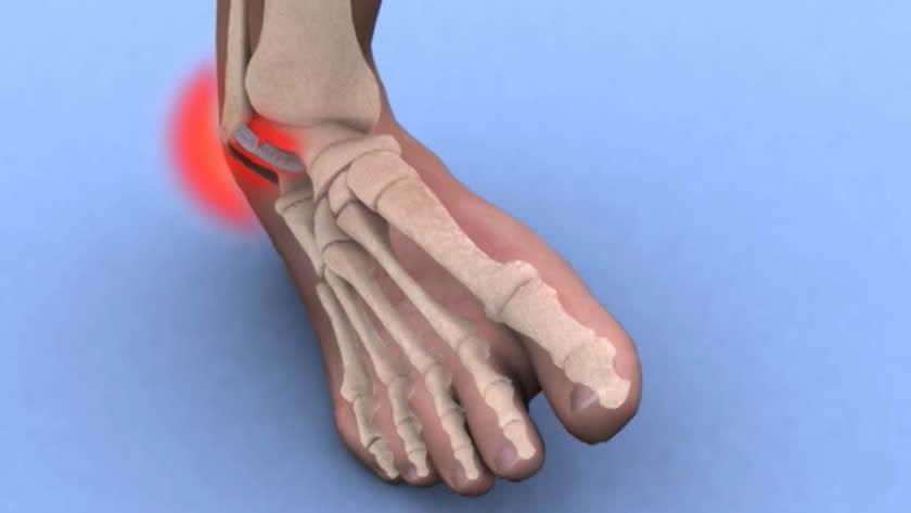 crize de durere articulară