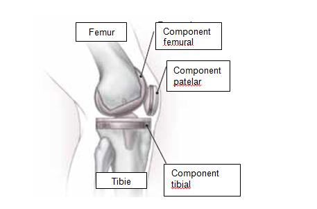 Protezarea articulara si controlul durerii in perioada de dupa operatie
