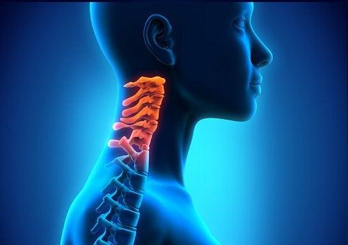 Spondiloza cervicală: cauze, simptome şi tratament - CSID: Ce se întâmplă Doctore?