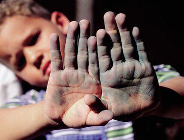 boli ale mâinilor