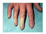 Boala și articulațiile lui Raynaud articulația șoldului acetabulum doare