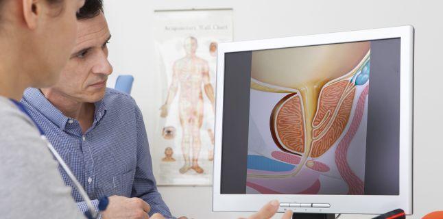 cancer de prostată și dureri articulare