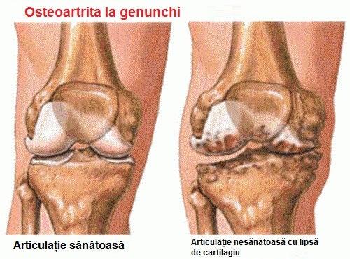 care sunt simptomele artritei genunchiului