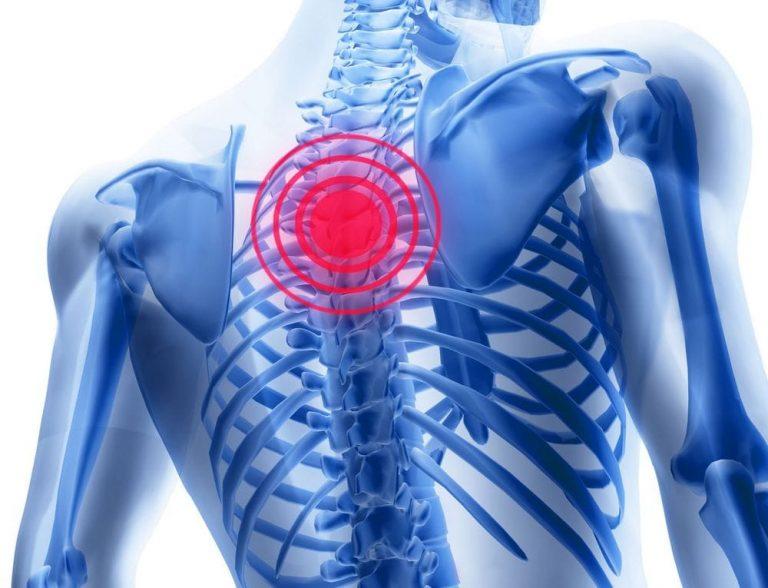 Medicamente pentru osteochondroza regiunii toracice, Simptome comune
