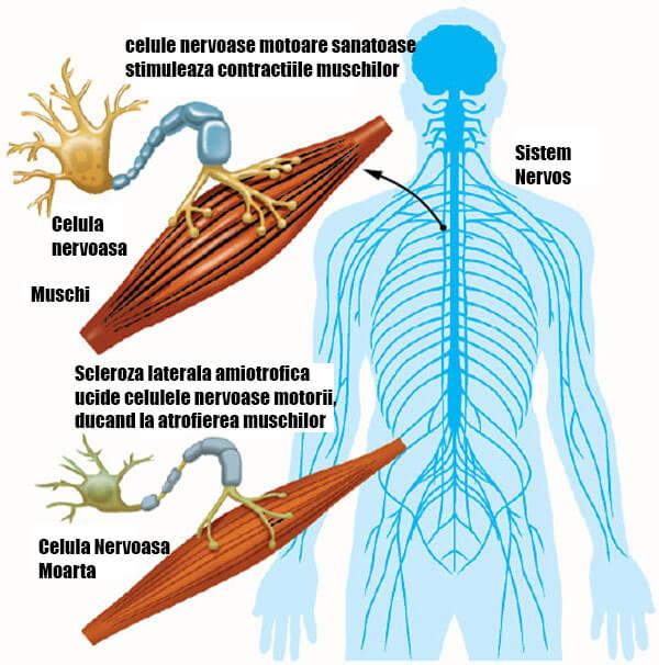 Medicina sclerozei articulare