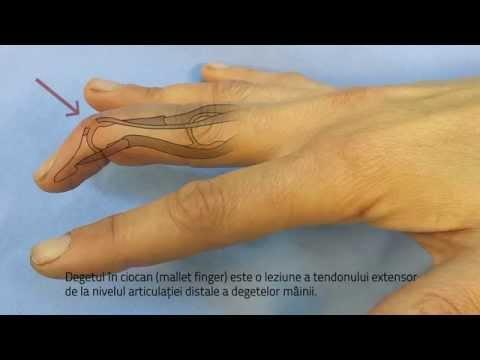 antecedente de boli articulare false artrita articulațiilor tratamentului unguentului piciorului