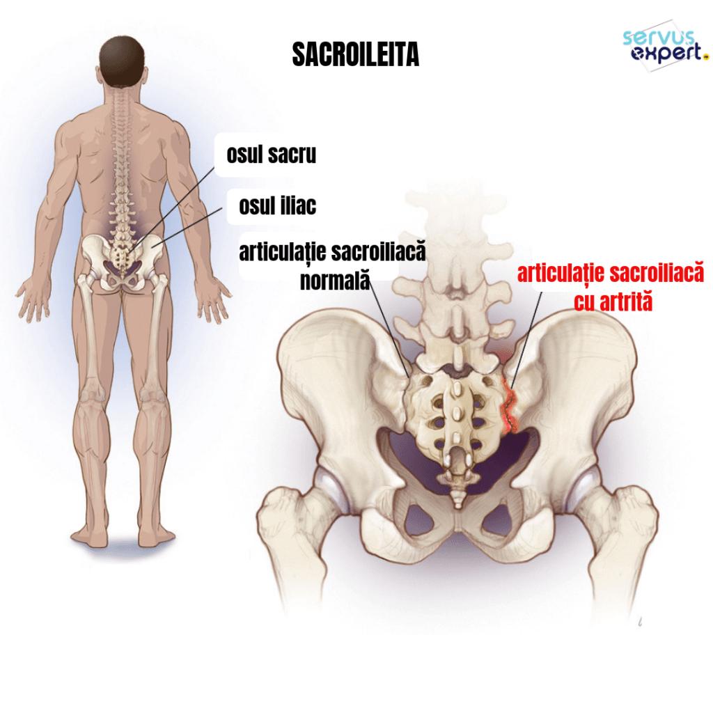 inflamația articulațiilor sacrului durerile articulației șoldului