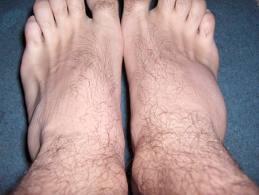 unguent din entorsă în genunchi)