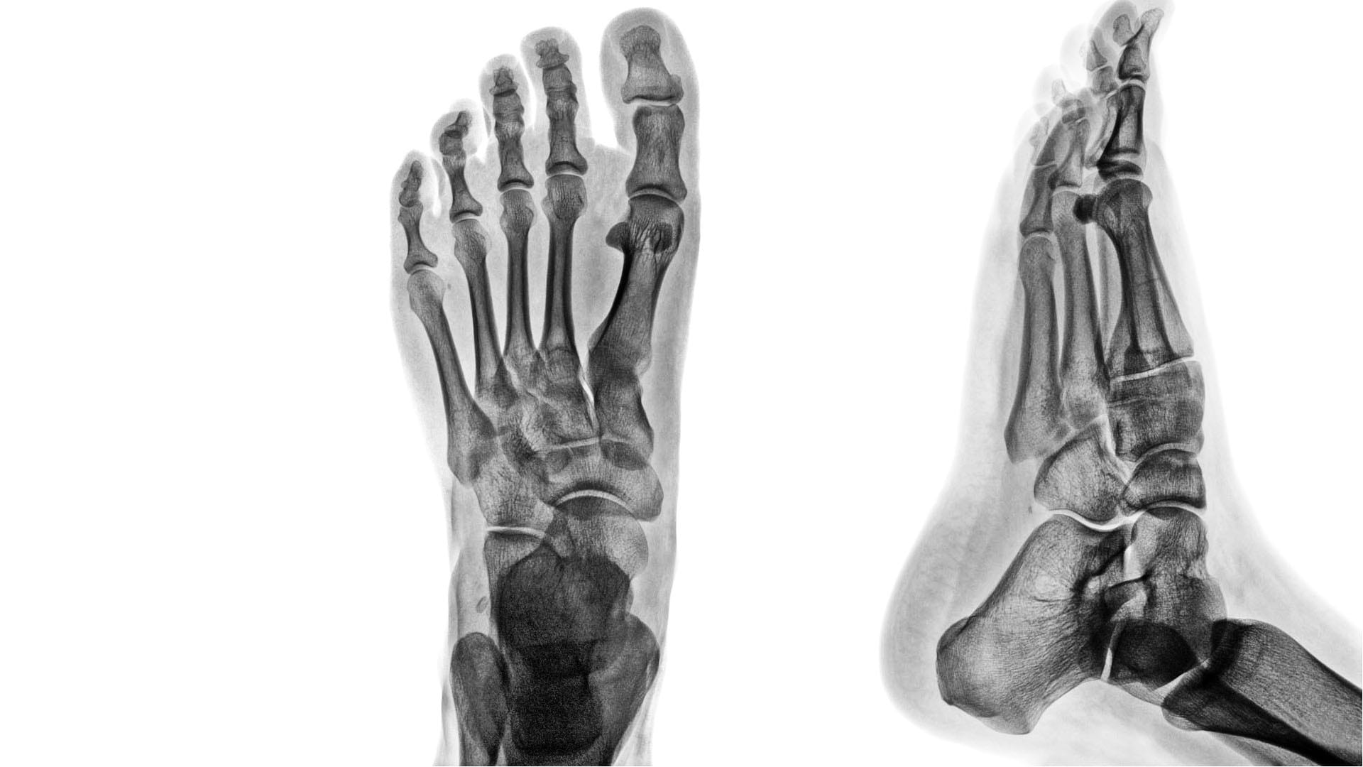 Artrita lisfranc