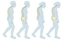 ce este osteochondroza articulațiilor șoldului
