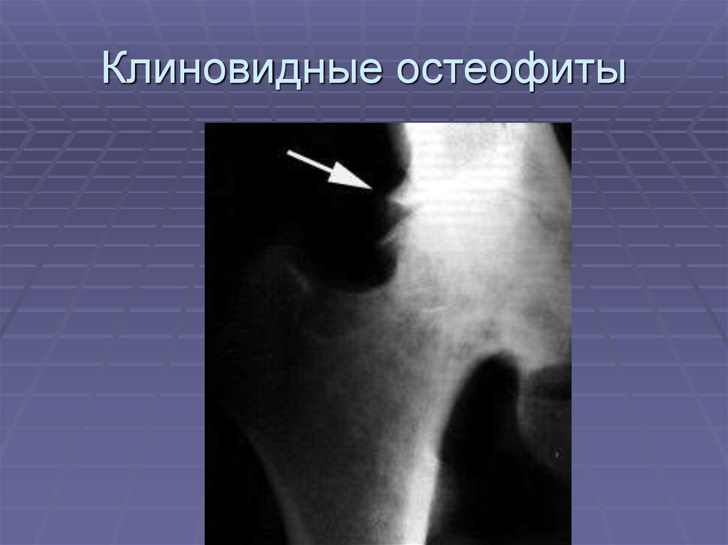 se rănesc articulațiile din țigări)