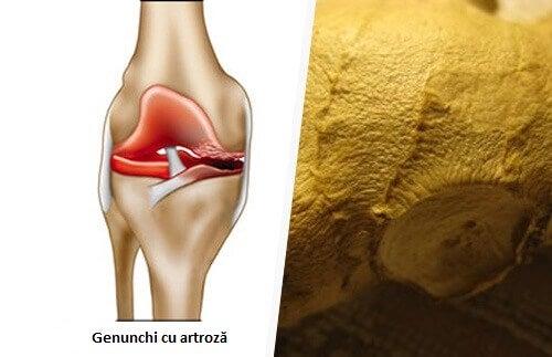 simptome și tratament artroză cocs