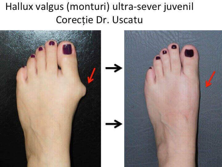 tratamentul genunchiului hallux valgus)