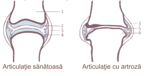 menisc rupt al tratamentului articulației genunchiului cum să alinați inflamația și umflarea articulației genunchiului