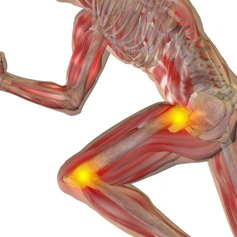unguent pentru dureri articulare pentru articulații Preț durere de la șold până la gleznă